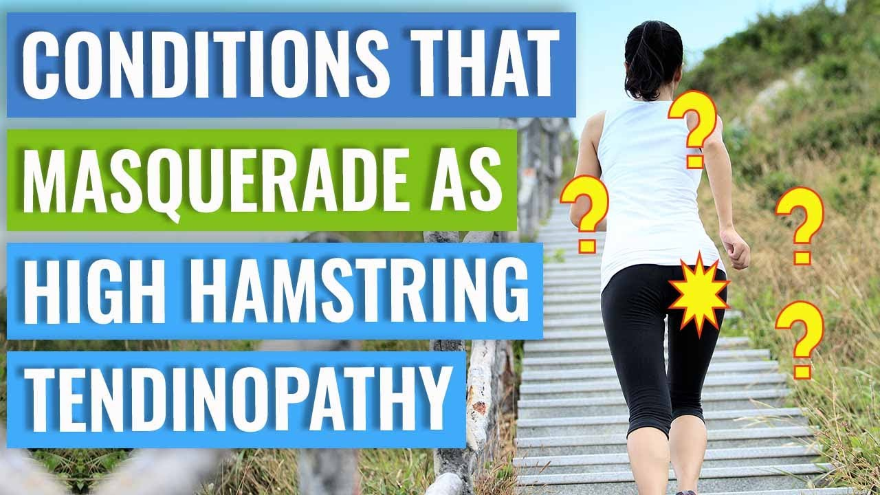 Conditions That Masquerade As High Hamstring Tendinopathy - YouTube
