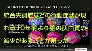 【うつ病】【統合失調症】【脳科学】 今日、早期発見や早期加療のおかげ...