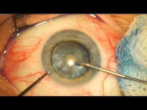 Зрелая катаракта (старческая, возрастная): лечение или