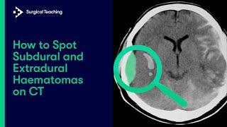 Hematoma radiology subdural Learning Radiology
