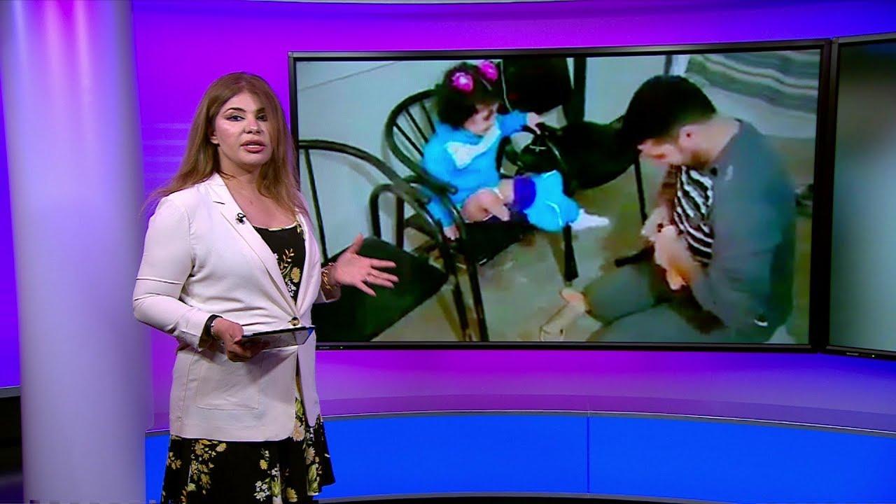 طفلة  سورية تفرح بحصولها على طرف اصطناعي بعد أن فقدت ساقها بسبب القصف