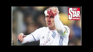Dynamo kiev star domagoj vida suffers horror injury