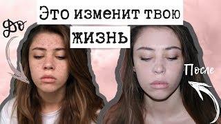 видео Как избавиться от прыщей и  красных пятен