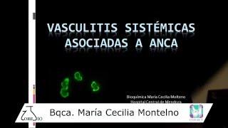 Sistémica agudas vasculitis