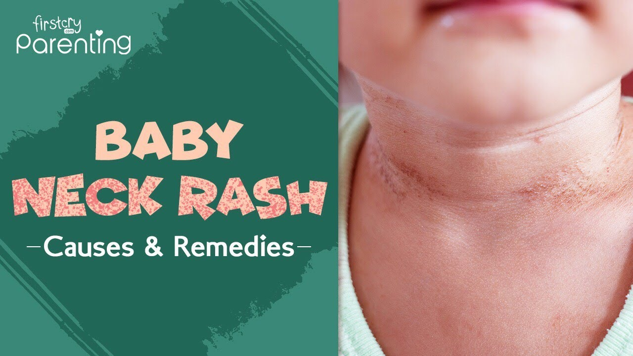 Download Neck Rash in Babies -  Causes, Signs and Treatment