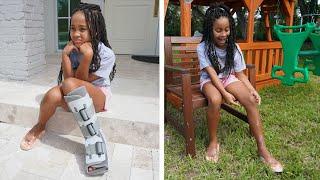 Girl with BROKEN LEG Finally Gets Her HAPPINESS BACK | FamousTubeFamily