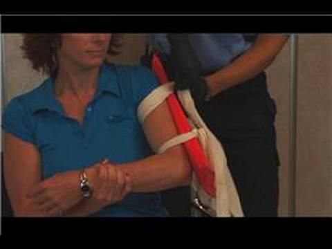 Humerus Fracture - Broken Upper Arm