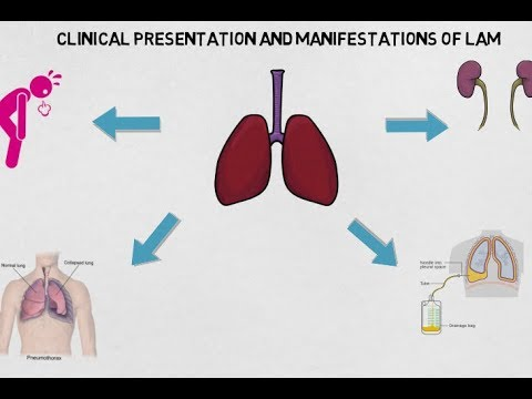 Lymphangioleiomyomatosis -- BAVLS
