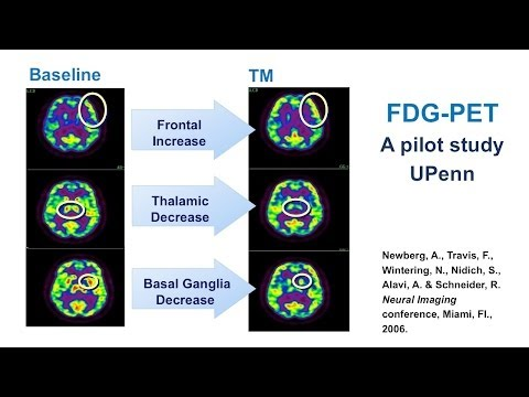 Brain Imaging of Transcendental Meditation - Dr. Robert Schneider