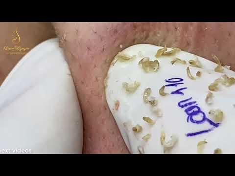 After Hours Of Work, Now It's Time For Acne Video 110 | Loan Nguyen