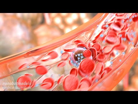 Metastasis and angiogenesis