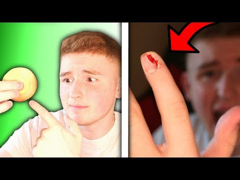 Thumbnail: 9,999 MPH FIDGET SPINNER VS FINGER NAIL!! (Started Bleeding)