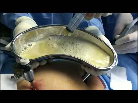 Laparoscopic excision of hydatid cyst in segments 7/8 of liver - Dr. J. K. A. Jameel