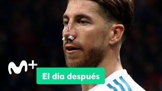 Baixar El Día Después (20/11/2017): La nariz de Ramos
