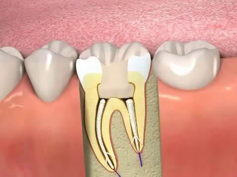 Giải đáp thắc mắc liệu sau lấy tủy răng thì tủy có mọc lại không