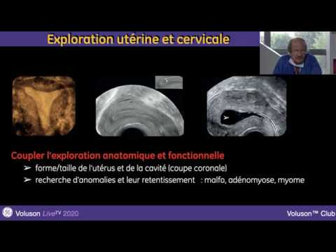 Case 58 Video 2 : Female external genital rejuvenation from YouTube · Duration:  12 seconds