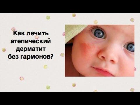 Дерматит - симптомы, фото, лечение дерматита на лице