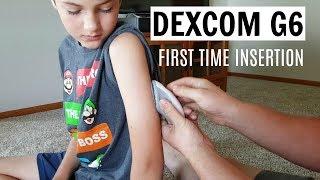 Dexcom G6 First Impressions