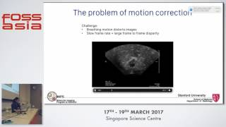 Machine Learning & Medical Imaging: The Future of Early Cancer Detection - Gaeun Kim - FOSSASIA 2017