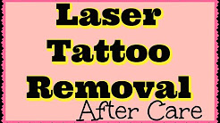Laser Tattoo Removal Aftercare | What To Do? What's Normal?