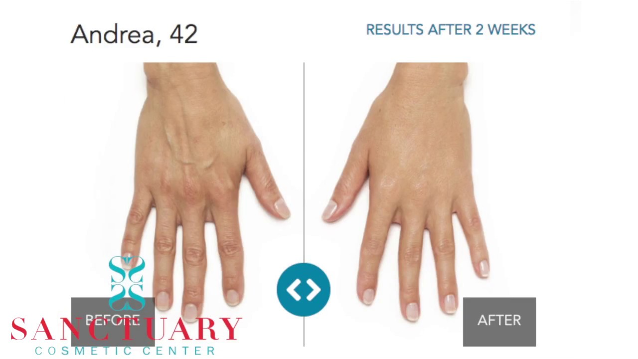 Anti Aging Treatments For Your Hands Stop The Aging Youtube