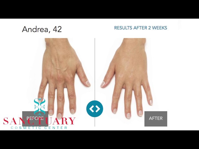 Anti-aging Treatments for Your Hands-Stop the aging