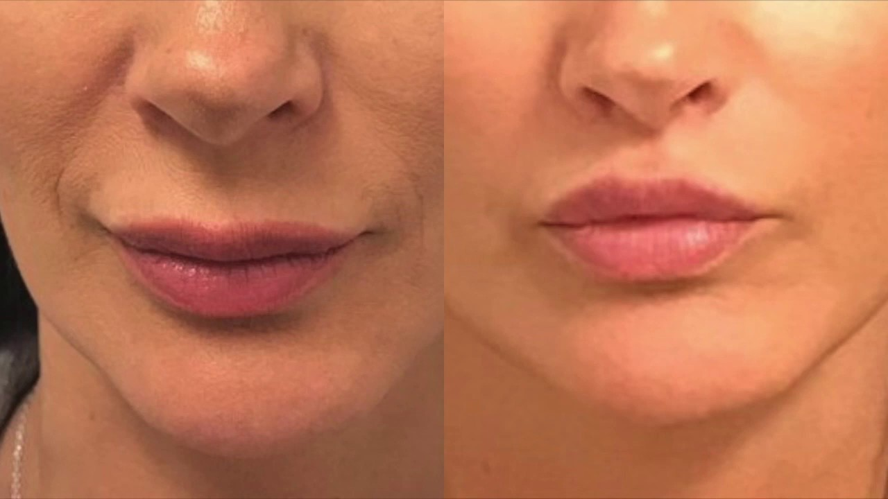 5 Things To Know Before Getting a Lip Lift