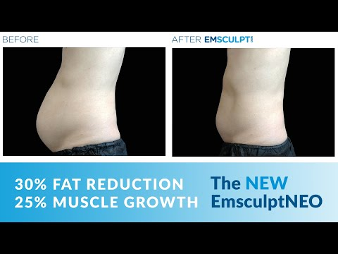 EmsculptNEO is now available at JUVA Skin & Laser Center in NYC!