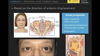 Dr Vincent Tan Berbincang Penyakit Tiroid TV3 WHI 061216.