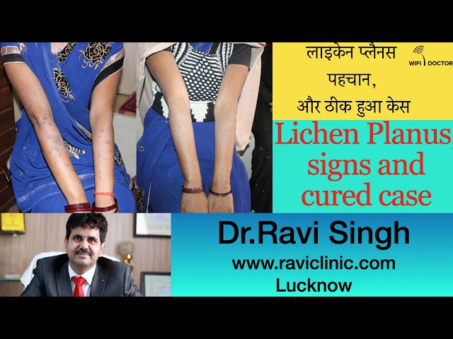 Lichen Plannus Real time Cured Case by Homeopathy  Dr Ravi Singh