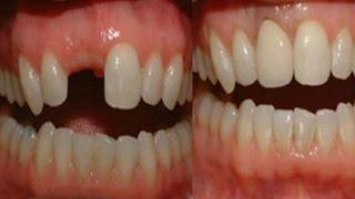Cara Baru Tumbuhkan Gigi Anda Yang Terlanjur Ompong
