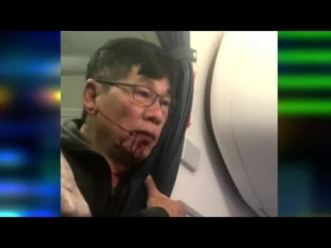 Thumbnail: New video shows United passenger bleeding after incident