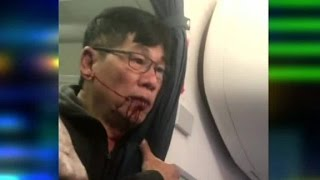 New video shows United passenger bleeding after incident