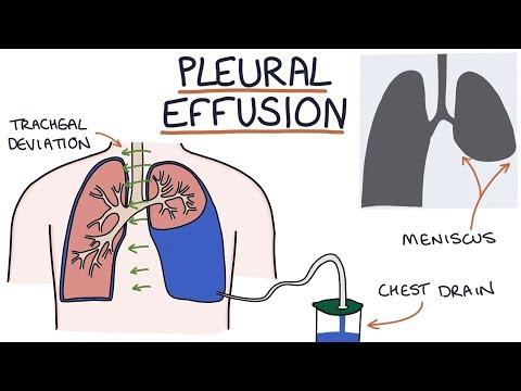 Understanding Pleural Effusions
