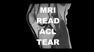 Basic MRI Evaluation of an ACL Tear