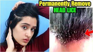 बालों की जूं कैसे हटाऐं | Permanent Removal of Hair Lice in 1 Week |