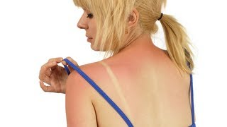 How to Treat Blistered Sunburn