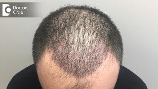 Is non surgical hair transplant permanent? - Dr. Nischal K