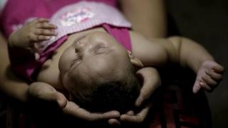 أخبار الصحة | فيروس زيكا ضاعف العيوب الخلقية 20 مرة