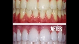How to Whiten Teeth Naturally At Home Remedy