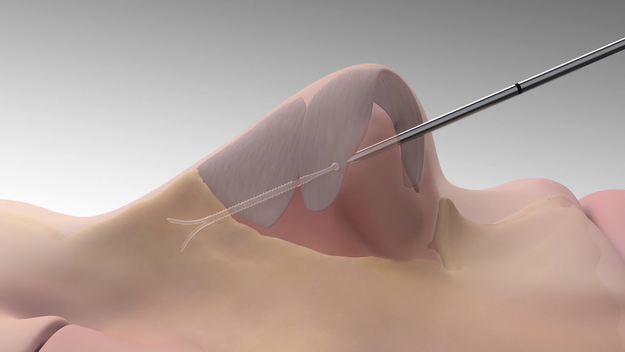 LATERA® Absorbable Nasal Implant | Richmond Sinus & Allergy
