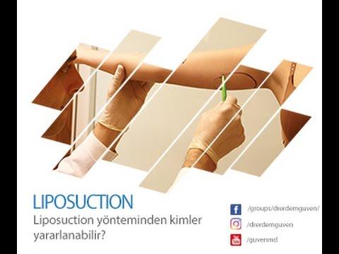 Liposuction yönteminden kimler yararlanabilir?