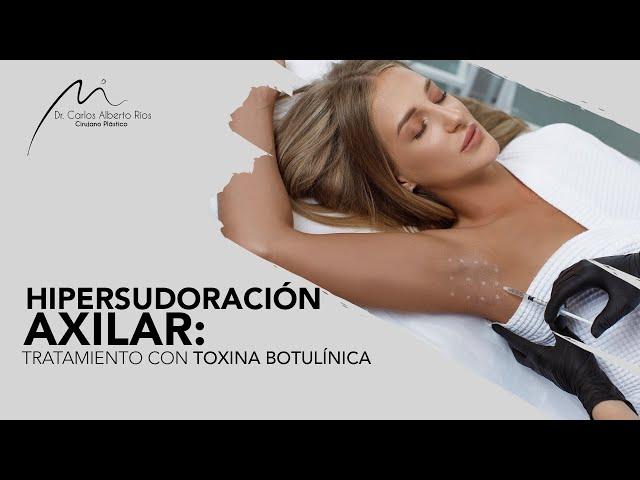 Hipersudoración Axilar- Tratamiento con Botox
