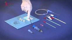 hqdefault - Medical Manufacturers For Hemodialysis Catheter Marhurkar