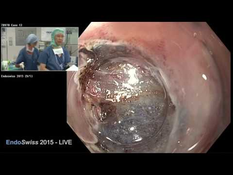 EndoSwiss 2015 LIVE case: ESD of early Barrett's early cancer