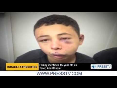 Masked Israeli Police brutally beat Palestinian-American teenager