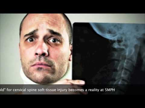 Fulton, MD Car Accident Chiropractor