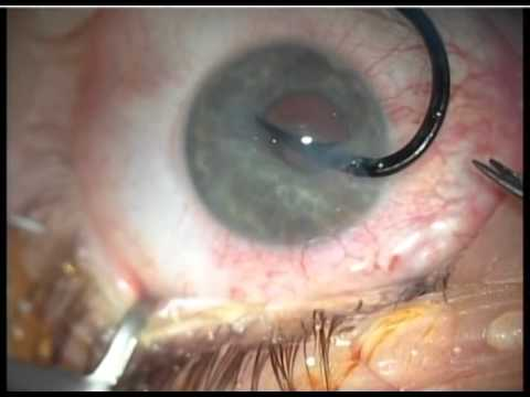 EYE SURGERY REMOVING FISH HOOK