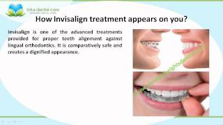 Significant Aspects of Invisalign treatment by www.glendaleheightsdentist.com Thumbnail
