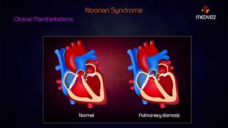 Download Lesch Nyhan Syndrome Usmle Videos - Dcyoutube